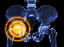 Тазобедренный сустав болит: причины, что делать?