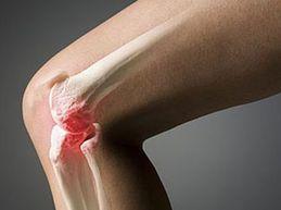 Характеристика остеоартроза коленного сустава: причины, симптомы, лечение