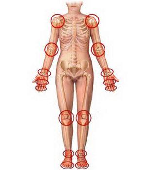 После ангины болят суставы