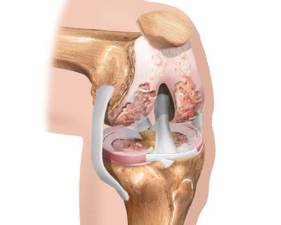 Артроз коленного сустава причины миллиграммов в зависимости от величины сустава