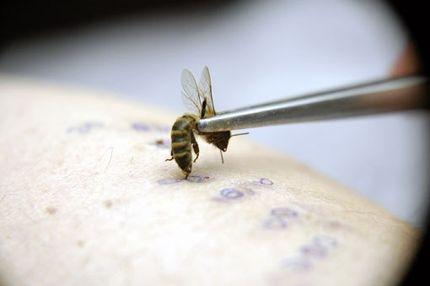 пчела жалит