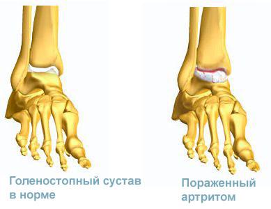 голеностопный сустав: норма и артрит