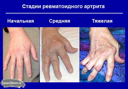Потемнение кожи на суставах боли в суставах прополис