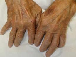 Причины, симптомы и эффективное лечение полиартрита пальцев рук
