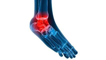 почему болит лодыжка левой ноги