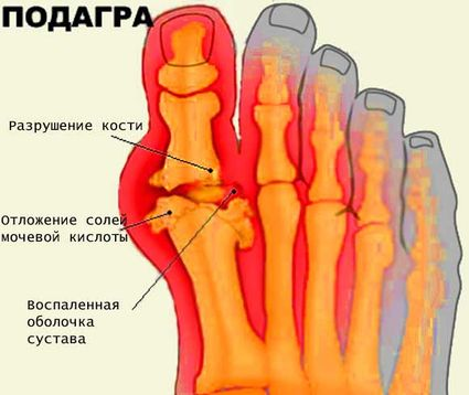 подагра большого пальца стопы