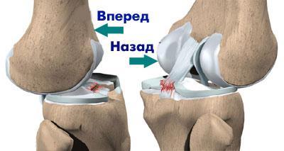 смещение костей при растяжении связок колена