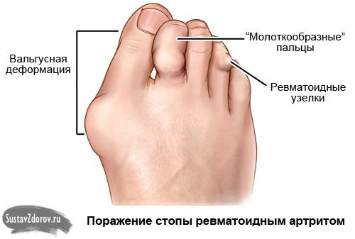 институт патологии позвоночника и суставов имени проф.м.и.ситенко форум