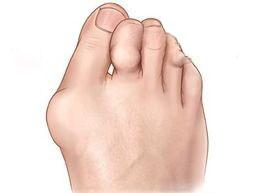 Артрит суставов стопы: причины, симптомы, как лечить недуг