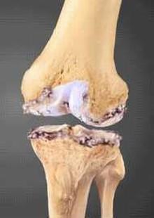 Деформирующий артроза коленного сустава мозоль сустава