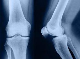 коленный сустав: вид спереди и сбоку