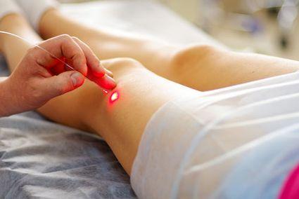 лечение лазером артроза коленного сустава