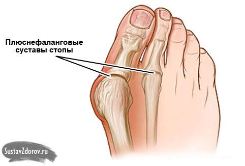 Плюснефаланговые суставы стопы