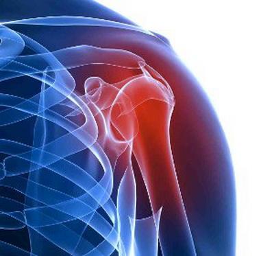 Лекарства при артрите плечевого сустава заболевания суставов отсутствие смазки