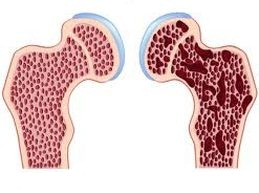 плотность костей при остеопорозе