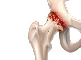 Причины болезней суставов, их симптомы и как лечить