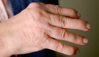 суставы пальцев рук артрит