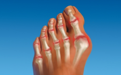 Причины, симптомы и лечение артрита пальцев ног, практические рекомендации
