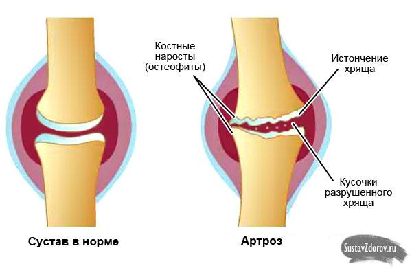 мильгамма при воспалении коленного сустава
