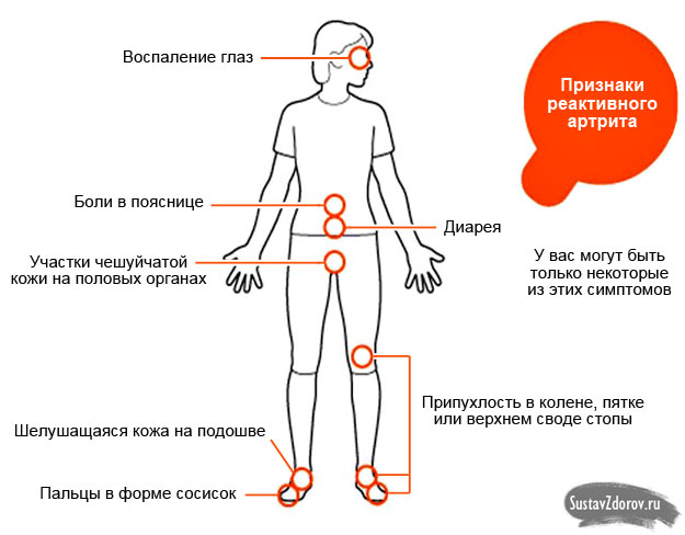 Реактивный артрит: причины, симптомы, лечение и диагностика
