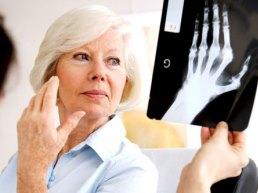 рентген-снимок кисти и ладони