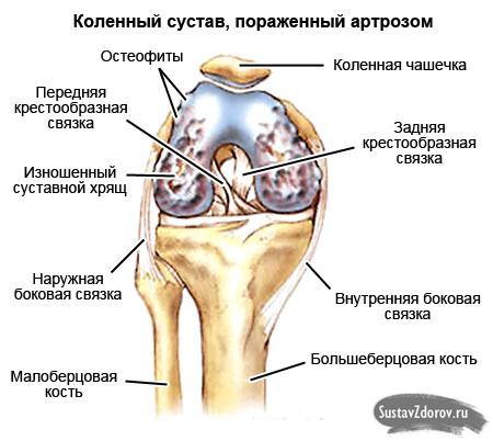 Народные средства от боли в коленях