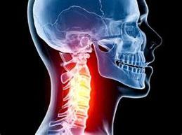 рентген снимок: боль в шейном отделе позвоночника