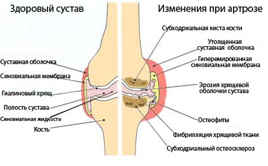 Строение стопы кости суставы и ее слабые места