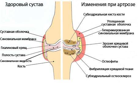 артроз суставов
