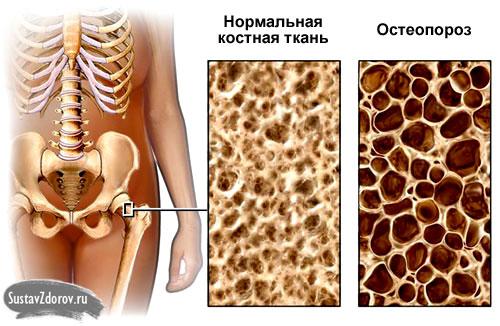 Лекарство для костей и суставов при разрушении