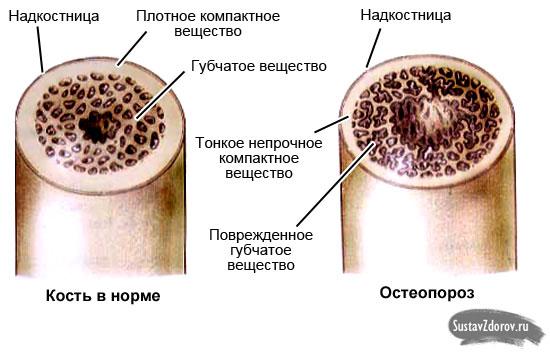 остеопороз кость в разрезе
