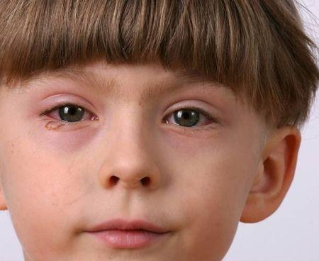 Как лечит детский артрит