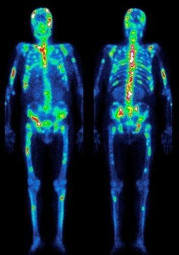 радиоизотопное сканирование скелета