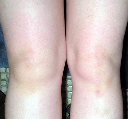 Ревматоидный артрит у детей: причины, симптомы, лечение (фото)
