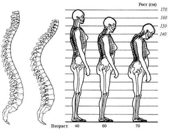 изменения скелета при остеопорозе с возрастом