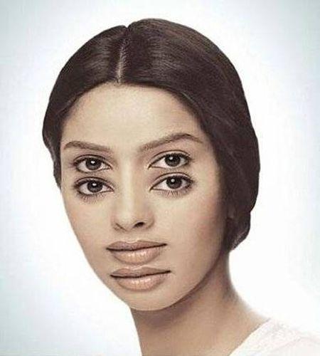 concussion-symptoms-dizziness