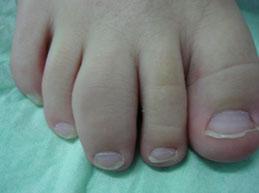 пораженный палец на ноге при артрите у детей