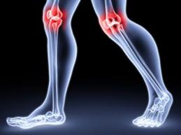 болят колени при ходьбе
