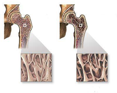 кости при детском остеопорозе