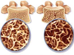 структура позвонка при остеопорозе