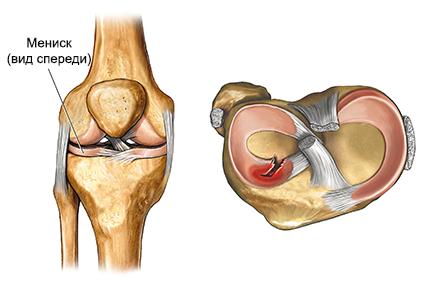 разрыв мениска колена