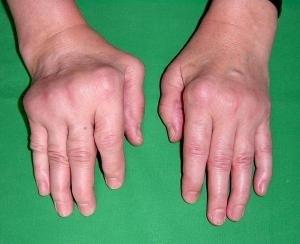 артрит суставов кистей