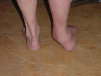 деформированный голеностопный сустав