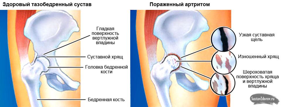 Лечение артритов тазобедренных суставов дугоотросчатые суставы шейного отдела позвоночника