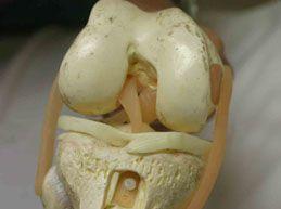 модель коленного сустава