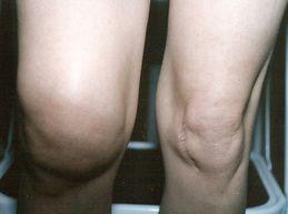 Что делать, если колено опухло и болит? Причины, диагностика, доврачебная помощь