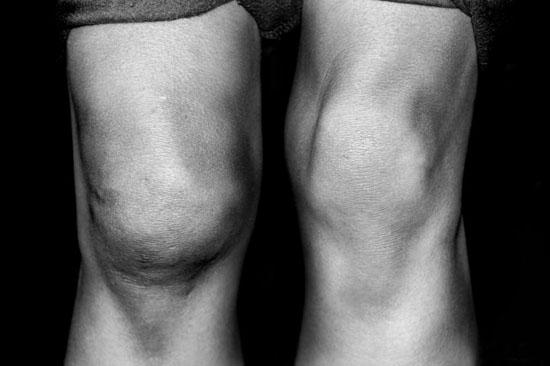 Чем лечить больное колено в домашних условиях маклюра и суставы