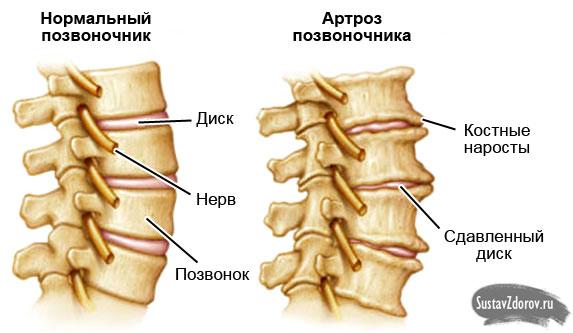 Артроз позвоночника: причины, симптомы, лечение, профилактика (фото)