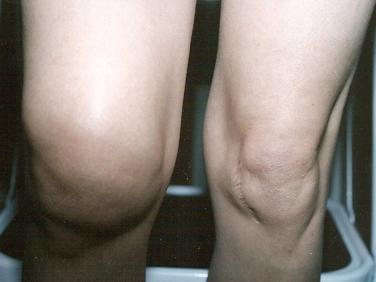 Доа коленного сустава лечение