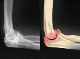 остеоартроз локтевого сустава: рентген и рисунок